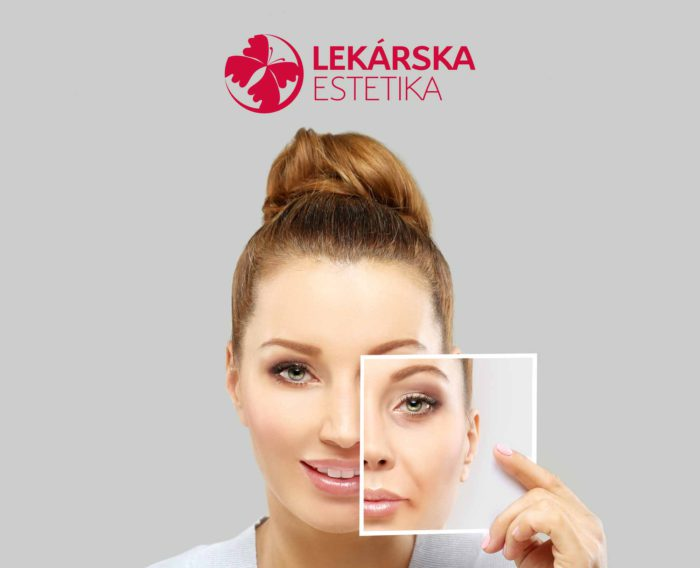 Žena pred a po procedúre LekarskaEstetika.sk